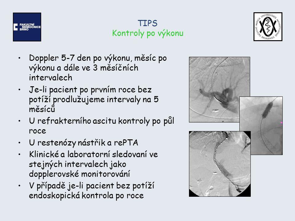 TIPS Kontroly po výkonu Doppler 5-7 den po výkonu, měsíc po výkonu a dále ve 3 měsíčních intervalech Je-li pacient po prvním roce bez potíží prodlužuj
