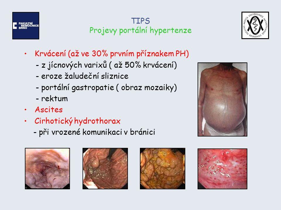 TIPS Projevy portální hypertenze Krvácení (až ve 30% prvním příznakem PH) - z jícnových varixů ( až 50% krvácení) - eroze žaludeční sliznice - portáln