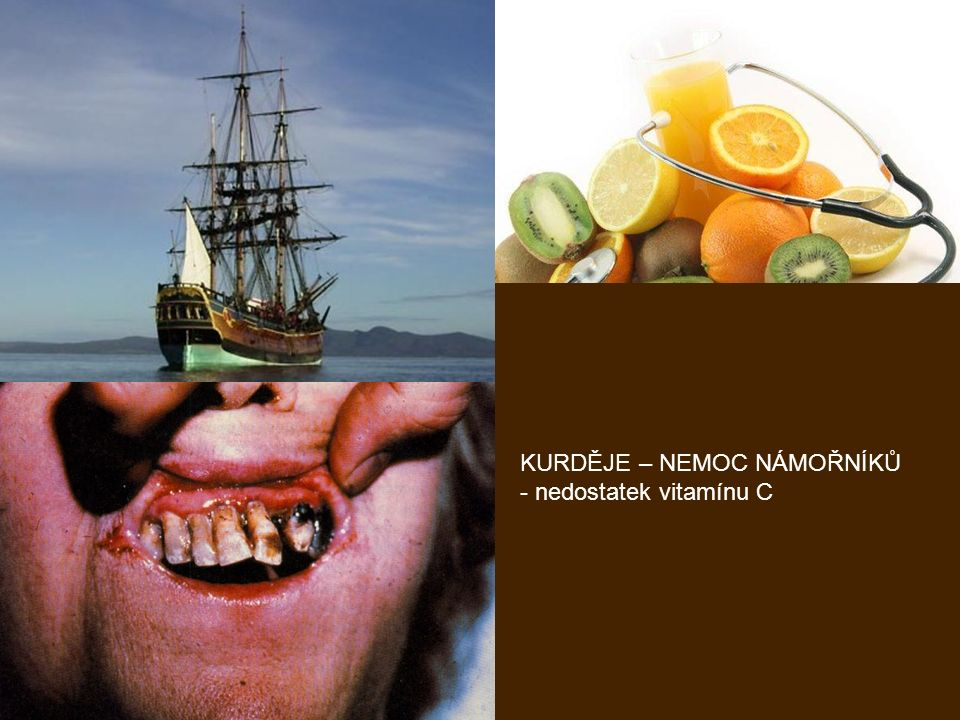 KURDĚJE – NEMOC NÁMOŘNÍKŮ - nedostatek vitamínu C