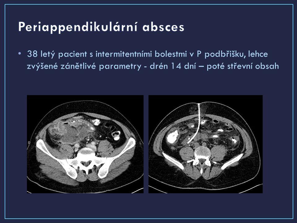 38 letý pacient s intermitentními bolestmi v P podbřišku, lehce zvýšené zánětlivé parametry - drén 14 dní – poté střevní obsah