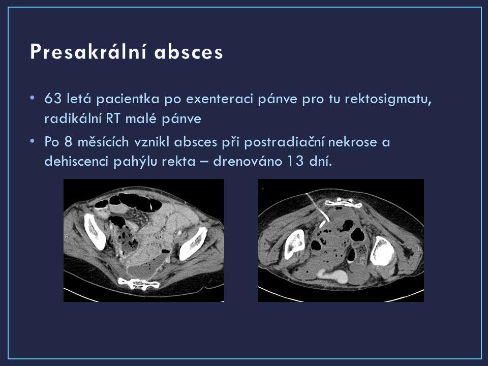 63 letá pacientka po exenteraci pánve pro tu rektosigmatu, radikální RT malé pánve Po 8 měsících vznikl absces při postradiační nekrose a dehiscenci pahýlu rekta – drenováno 13 dní.