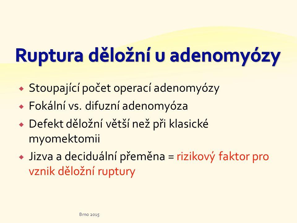  Stoupající počet operací adenomyózy  Fokální vs. difuzní adenomyóza  Defekt děložní větší než při klasické myomektomii  Jizva a deciduální přeměn