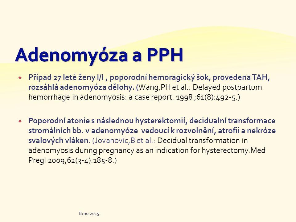  Případ 27 leté ženy I/I, poporodní hemoragický šok, provedena TAH, rozsáhlá adenomyóza dělohy. (Wang,PH et al.: Delayed postpartum hemorrhage in ade
