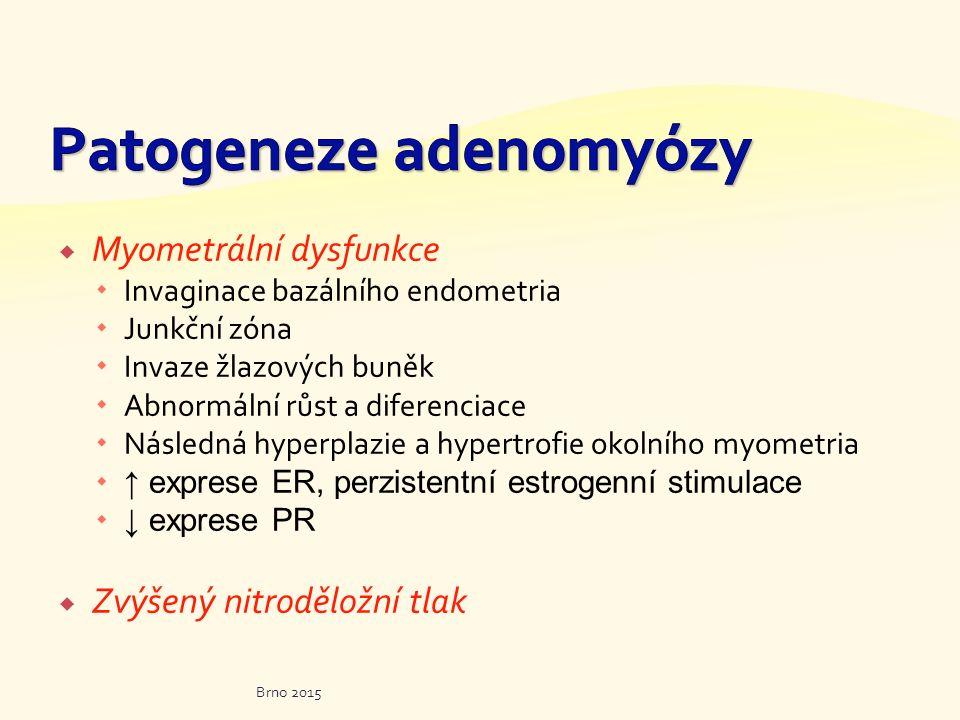  Myometrální dysfunkce  Invaginace bazálního endometria  Junkční zóna  Invaze žlazových buněk  Abnormální růst a diferenciace  Následná hyperpla