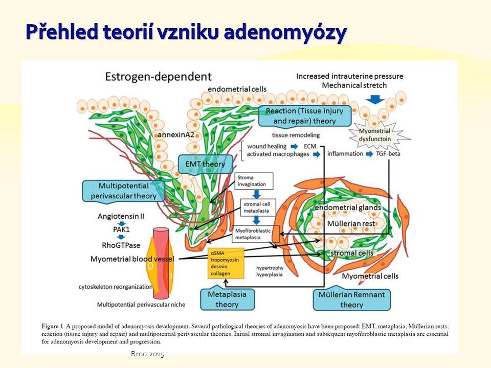  Stoupající počet operací adenomyózy  Fokální vs.