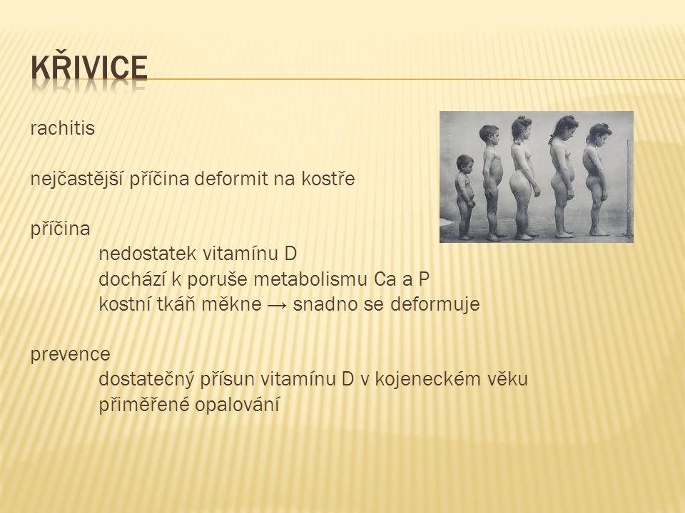 rachitis nejčastější příčina deformit na kostře příčina nedostatek vitamínu D dochází k poruše metabolismu Ca a P kostní tkáň měkne → snadno se deformuje prevence dostatečný přísun vitamínu D v kojeneckém věku přiměřené opalování
