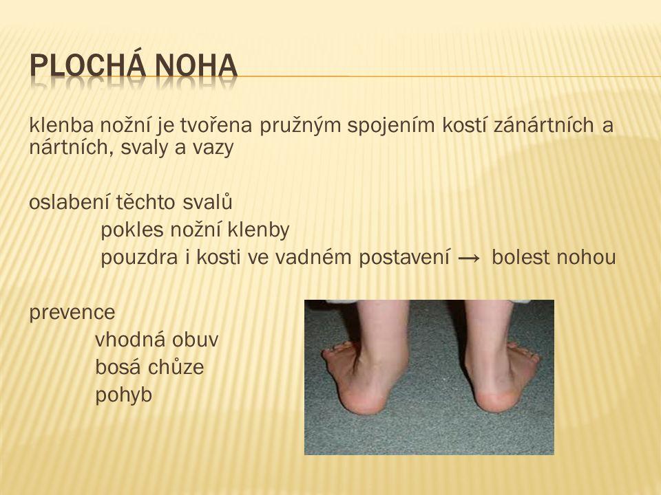 klenba nožní je tvořena pružným spojením kostí zánártních a nártních, svaly a vazy oslabení těchto svalů pokles nožní klenby pouzdra i kosti ve vadném postavení → bolest nohou prevence vhodná obuv bosá chůze pohyb