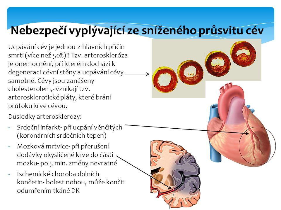 Ucpávání cév je jednou z hlavních příčin smrti (více než 50%)!.