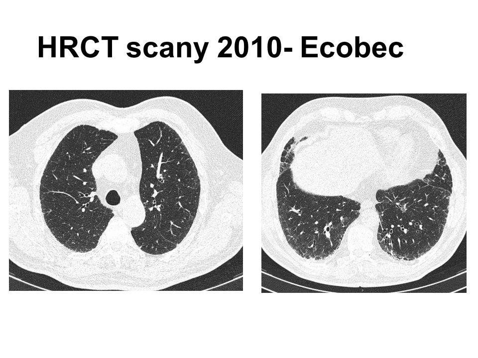 Přirozený průběh IPF Progresivní pokles plicních funkcí- respirační selhání, smrt, střední přežití 2-3 roky Rychlost poklesu plicních funkcí- fenotypy  Pozvolný pokles- většina pacientů  Dlouhodobá stabilita plicních funkcí  Rychlý pokles funkcí Akutní exacerbace IPF- 5-10% pacientů Mortalita IPF vysoká- 61,2 úmrtí /1.000.000 obyvatel u mužů a 54,5/1.000.000 u žen (USA) – Příčinou smrti nejčastěji progrese IPF (60%), z dalších příčin- nemoc koronárních tepen, plicní embolie a rakovina plic, FVC <65%- vyšší riziko smrti – Prediktory mortality- věk, skóre, dušnosti, BMI, FVC%pred, TL CO, 6MWD, akutní exacerbace, hospitalizace pro respirační potíže – 1-roční mortalita 6,6% – 2-letá mortalita 13,7%