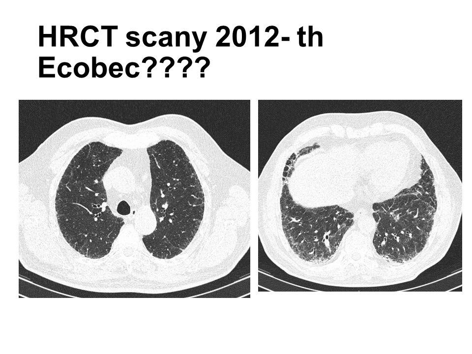 HRCT scany 2014- JIP