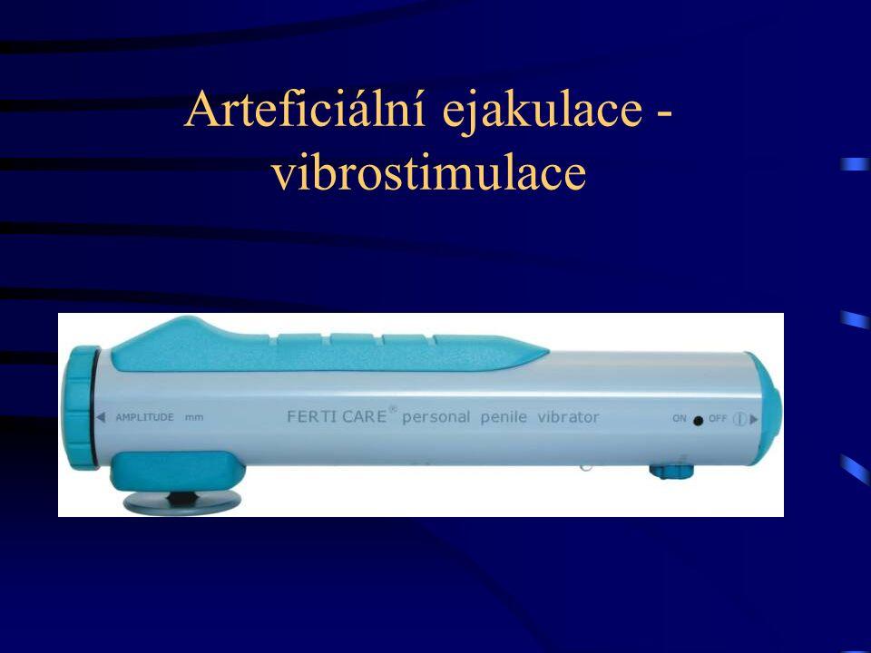 Arteficiální ejakulace - vibrostimulace
