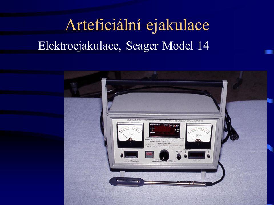 Arteficiální ejakulace Elektroejakulace, Seager Model 14
