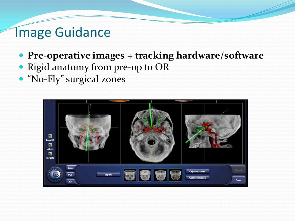 Image Guidance Pre-operative images + tracking hardware/software Rigid anatomy from pre-op to OR No-Fly surgical zones