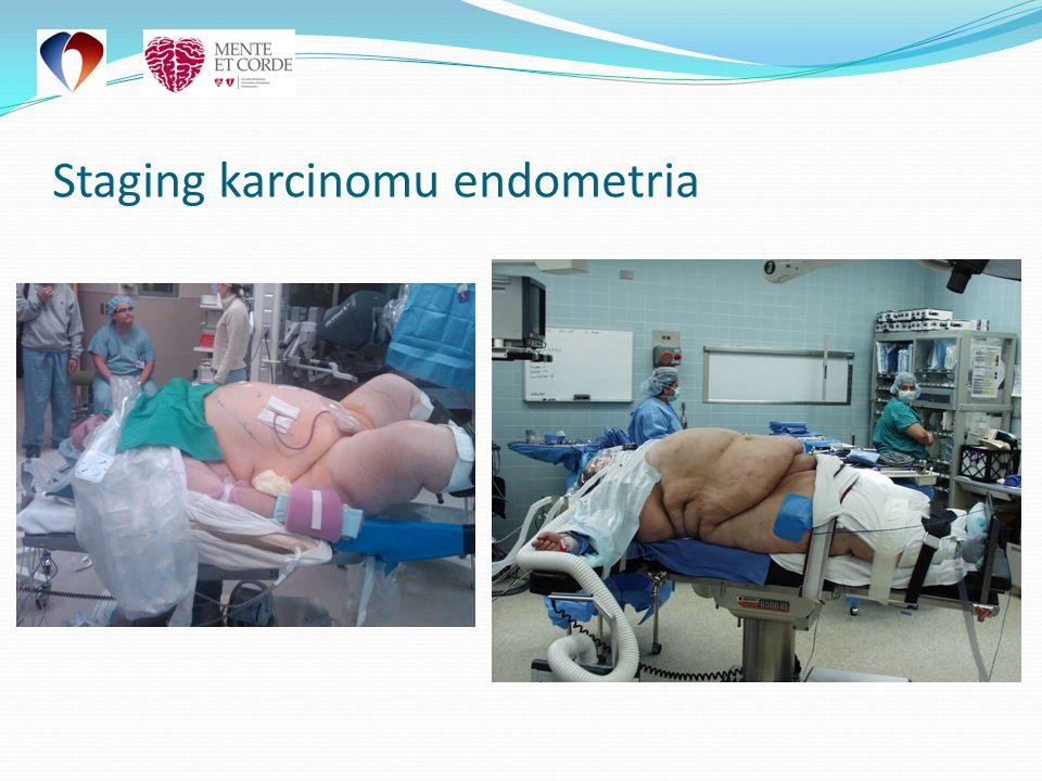 Paraaortální a pánevní lymfadenektomie