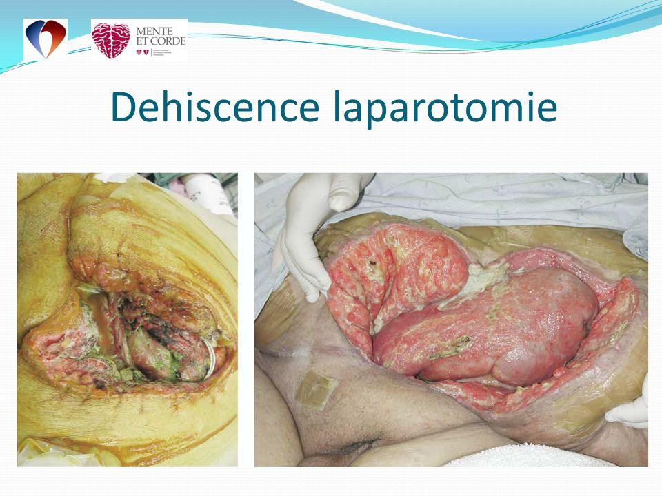 Dehiscence laparotomie
