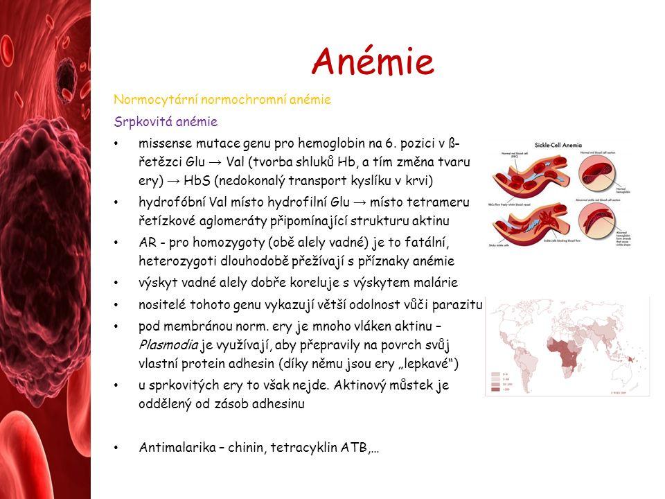 Anémie Normocytární normochromní anémie Srpkovitá anémie missense mutace genu pro hemoglobin na 6.