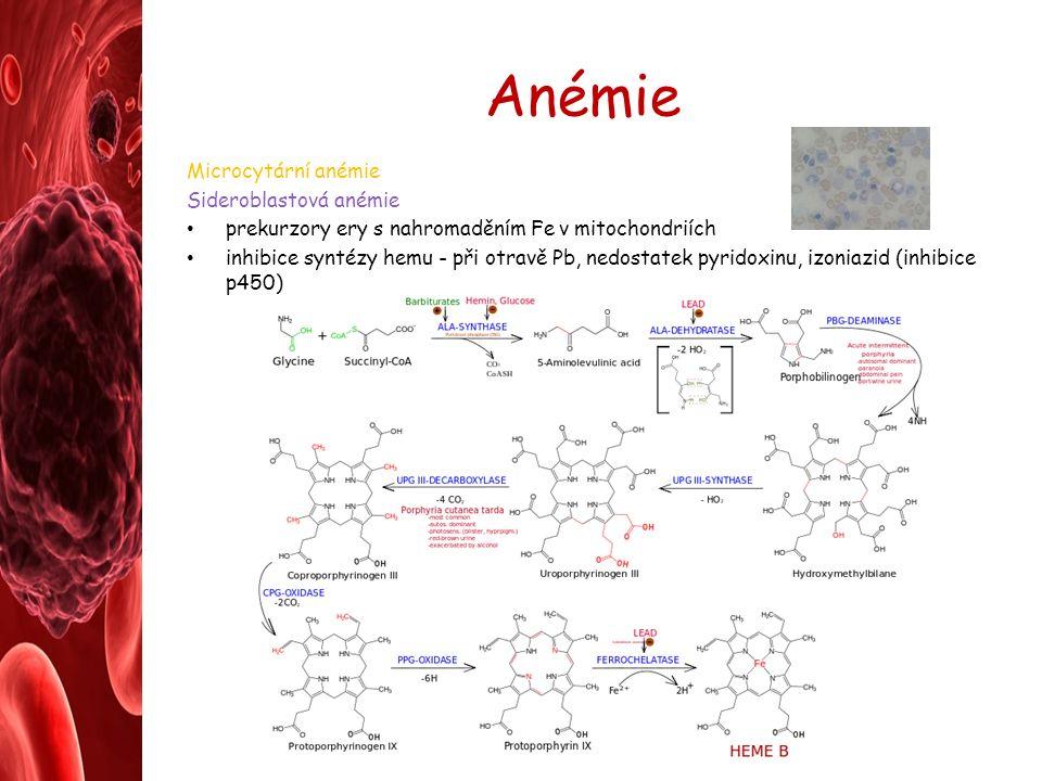 Anémie Microcytární anémie Sideroblastová anémie prekurzory ery s nahromaděním Fe v mitochondriích inhibice syntézy hemu - při otravě Pb, nedostatek pyridoxinu, izoniazid (inhibice p450)