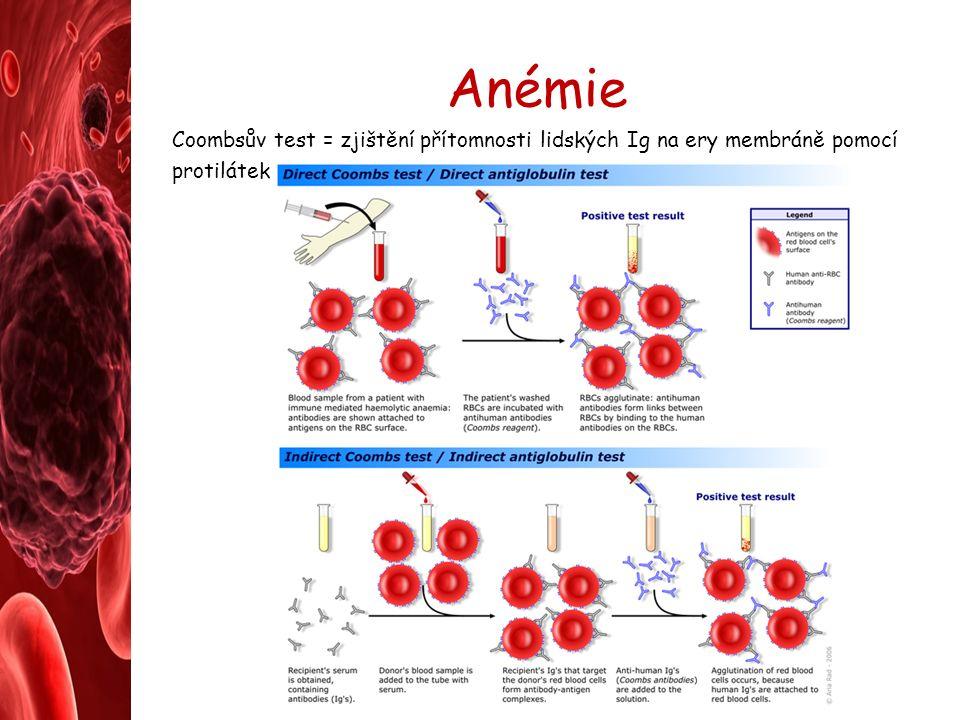 Anémie Coombsův test = zjištění přítomnosti lidských Ig na ery membráně pomocí protilátek