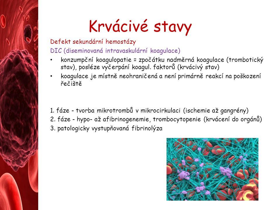 Krvácivé stavy Defekt sekundární hemostázy DIC (diseminovaná intravaskulární koagulace) konzumpční koagulopatie = zpočátku nadměrná koagulace (trombotický stav), posléze vyčerpání koagul.
