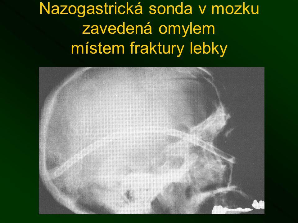 Nazogastrická sonda v mozku zavedená omylem místem fraktury lebky