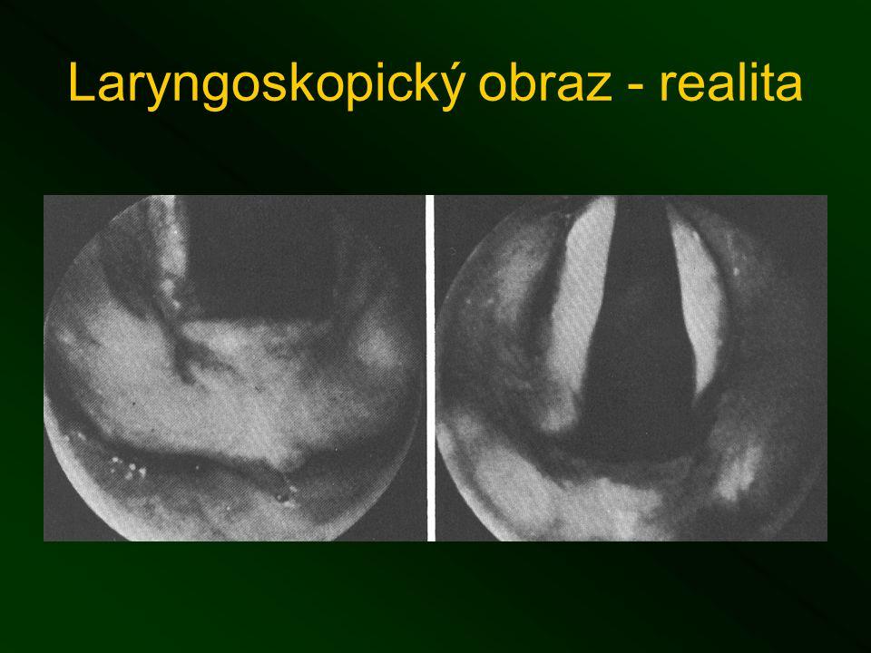 Laryngoskopický obraz - realita