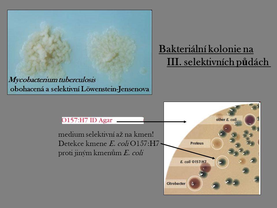 Mycobacterium tuberculosis obohacená a selektivní Löwenstein-Jensenova medium selektivní a ž na kmen! Detekce kmene E. coli O157:H7 proti jiným kmen ů
