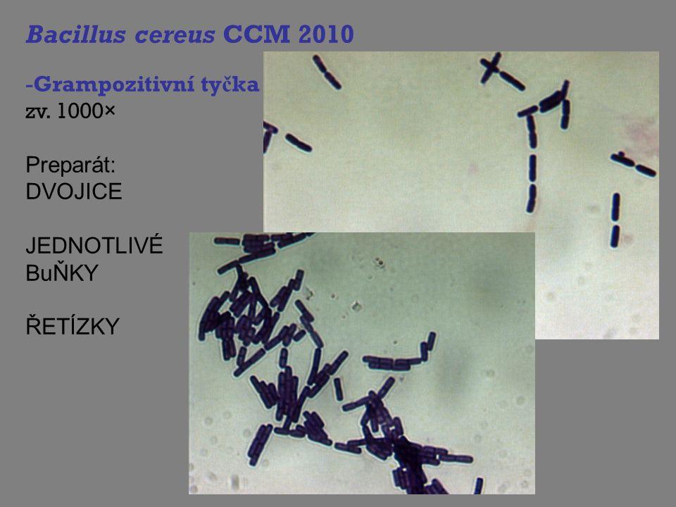 Bacillus cereus CCM 2010 -Grampozitivní ty č ka zv. 1000× Preparát: DVOJICE JEDNOTLIVÉ BuŇKY ŘETÍZKY
