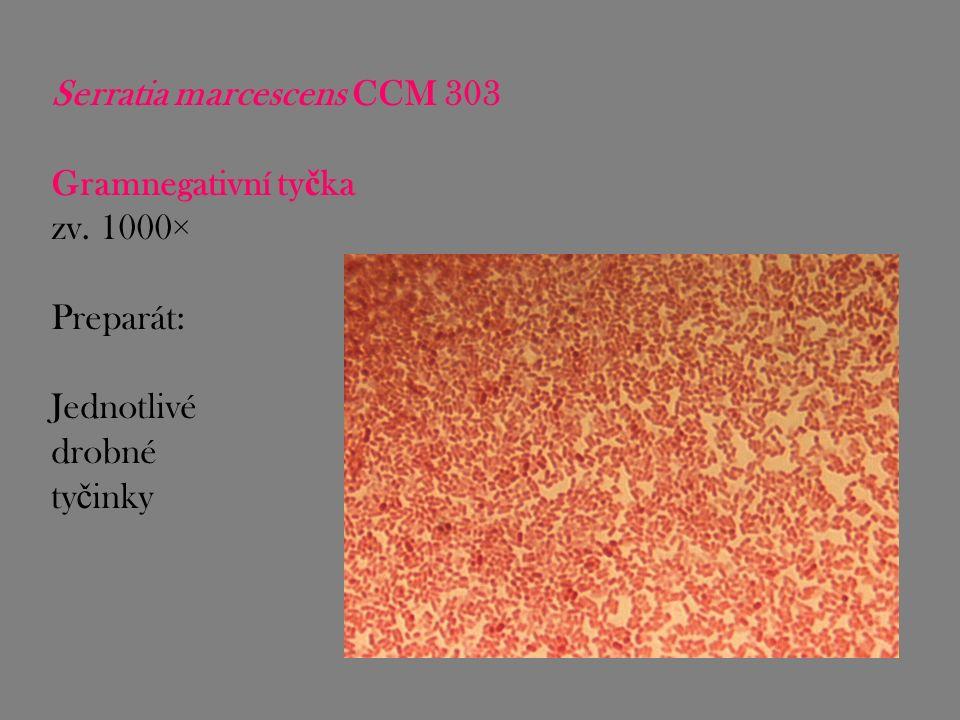 Serratia marcescens CCM 303 Gramnegativní ty č ka zv. 1000× Preparát: Jednotlivé drobné ty č inky
