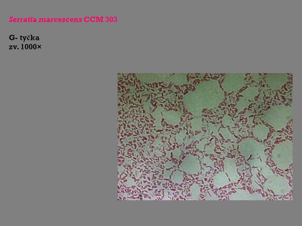 Serratia marcescens CCM 303 G- ty č ka zv. 1000×