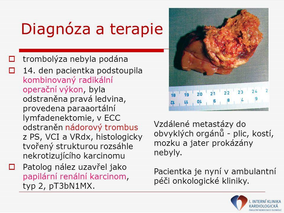 Diagnóza a terapie  trombolýza nebyla podána  14. den pacientka podstoupila kombinovaný radikální operační výkon, byla odstraněna pravá ledvina, pro