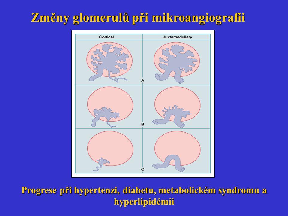 Změny glomerulů při mikroangiografii Progrese při hypertenzi, diabetu, metabolickém syndromu a hyperlipidémii