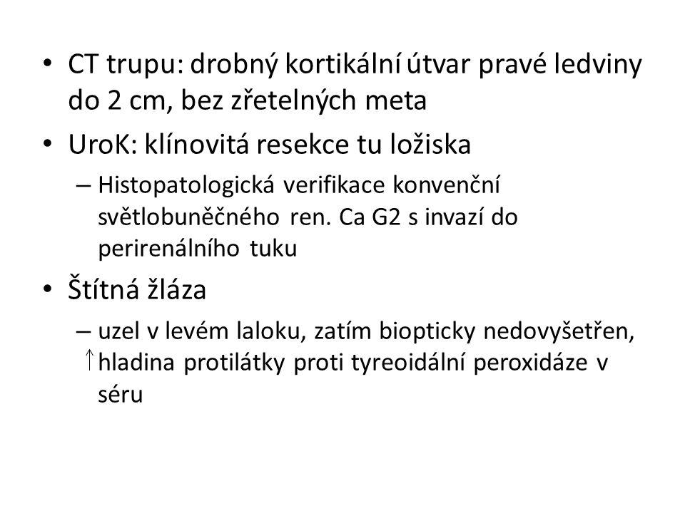 CT trupu: drobný kortikální útvar pravé ledviny do 2 cm, bez zřetelných meta UroK: klínovitá resekce tu ložiska – Histopatologická verifikace konvenční světlobuněčného ren.
