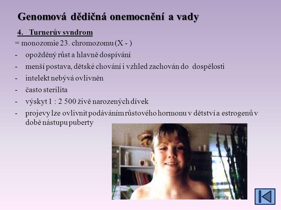 Genomová dědičná onemocnění a vady = monozomie 23.