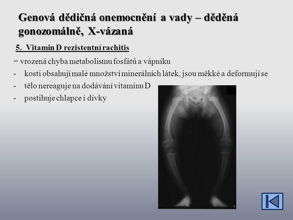 Genová dědičná onemocnění a vady – děděná gonozomálně, X-vázaná 5.