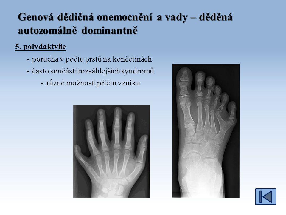 Genová dědičná onemocnění a vady – děděná autozomálně dominantně 5.