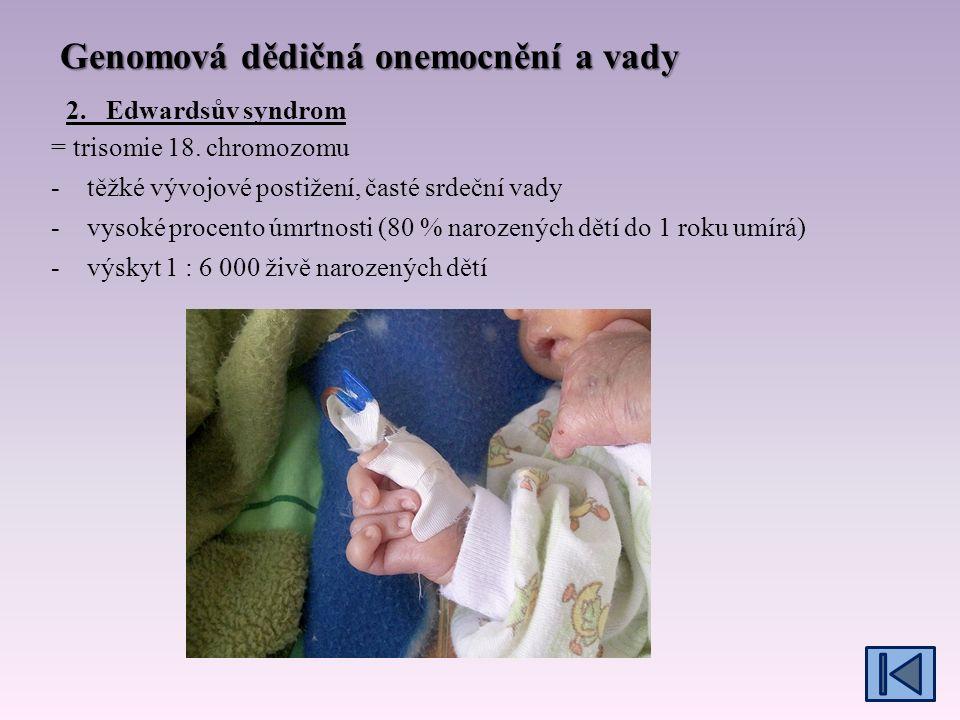 Genomová dědičná onemocnění a vady = trisomie 13.