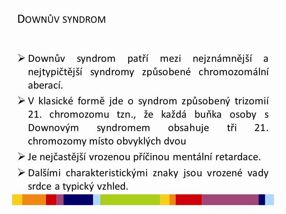 D OWNŮV SYNDROM  Downův syndrom patří mezi nejznámnější a nejtypičtější syndromy způsobené chromozomální aberací.