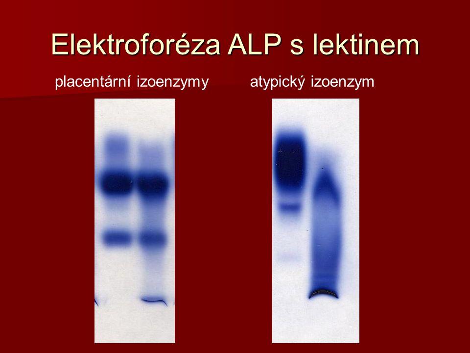 Elektroforéza ALP s lektinem placentární izoenzymyatypický izoenzym