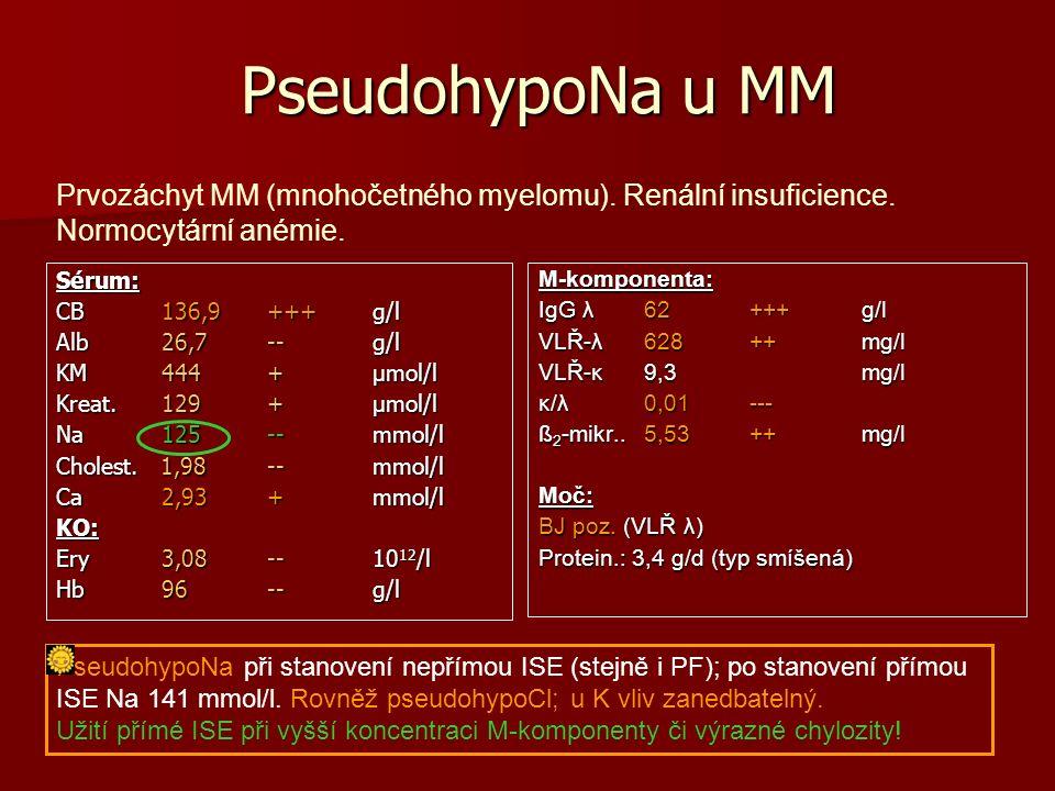 PseudohypoNa u MM PseudohypoNa u MM Sérum: CB136,9 +++g/l Alb 26,7 --g/l KM 444 +µmol/l Kreat.