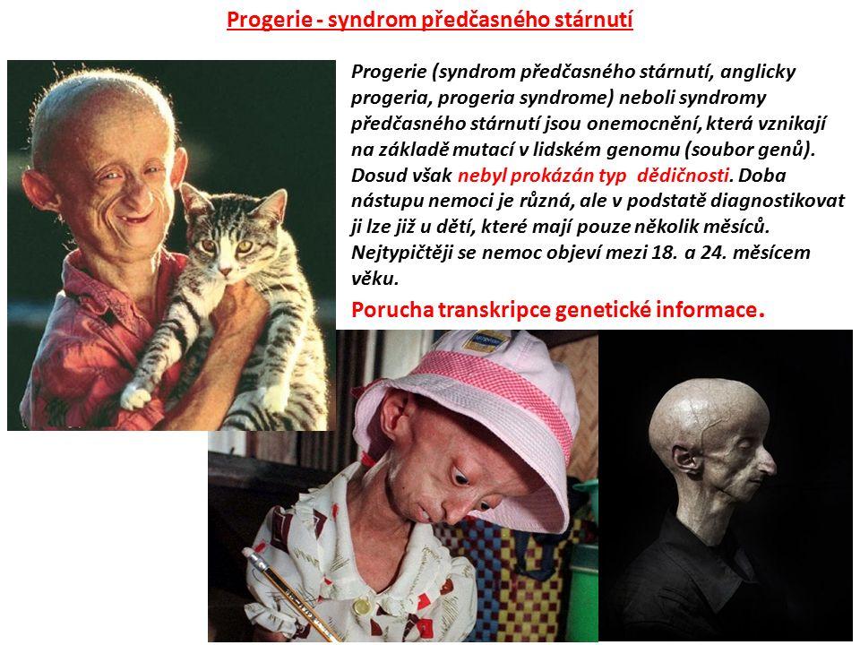 Progerie (syndrom předčasného stárnutí, anglicky progeria, progeria syndrome) neboli syndromy předčasného stárnutí jsou onemocnění, která vznikají na
