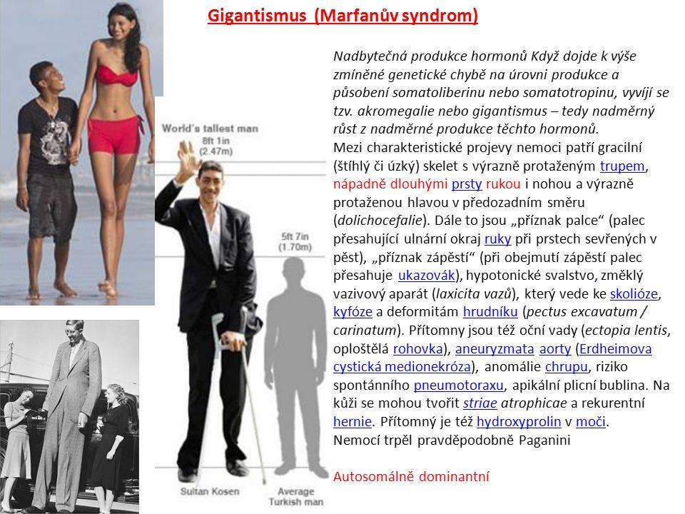 Nadbytečná produkce hormonů Když dojde k výše zmíněné genetické chybě na úrovni produkce a působení somatoliberinu nebo somatotropinu, vyvíjí se tzv.