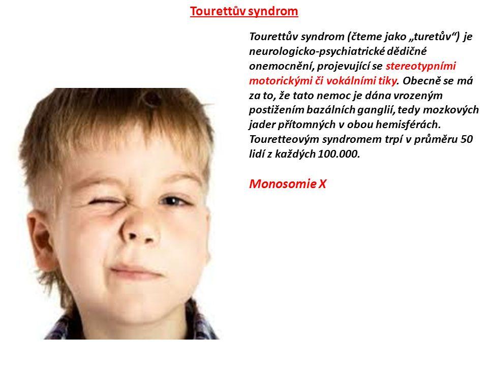 """Tourettův syndrom (čteme jako """"turetův"""") je neurologicko-psychiatrické dědičné onemocnění, projevující se stereotypními motorickými či vokálními tiky."""