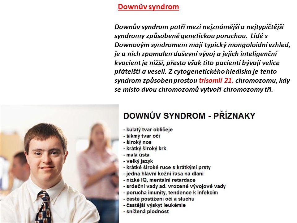 Downův syndrom patří mezi nejznámější a nejtypičtější syndromy způsobené genetickou poruchou. Lidé s Downovým syndromem mají typický mongoloidní vzhle