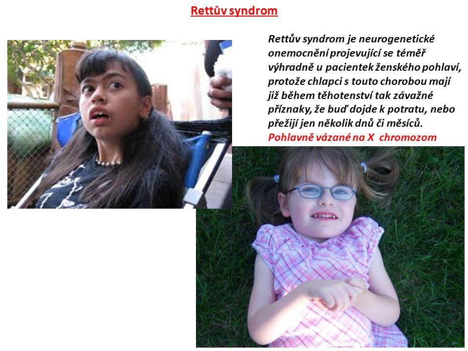 Rettův syndrom je neurogenetické onemocnění projevující se téměř výhradně u pacientek ženského pohlaví, protože chlapci s touto chorobou mají již běhe