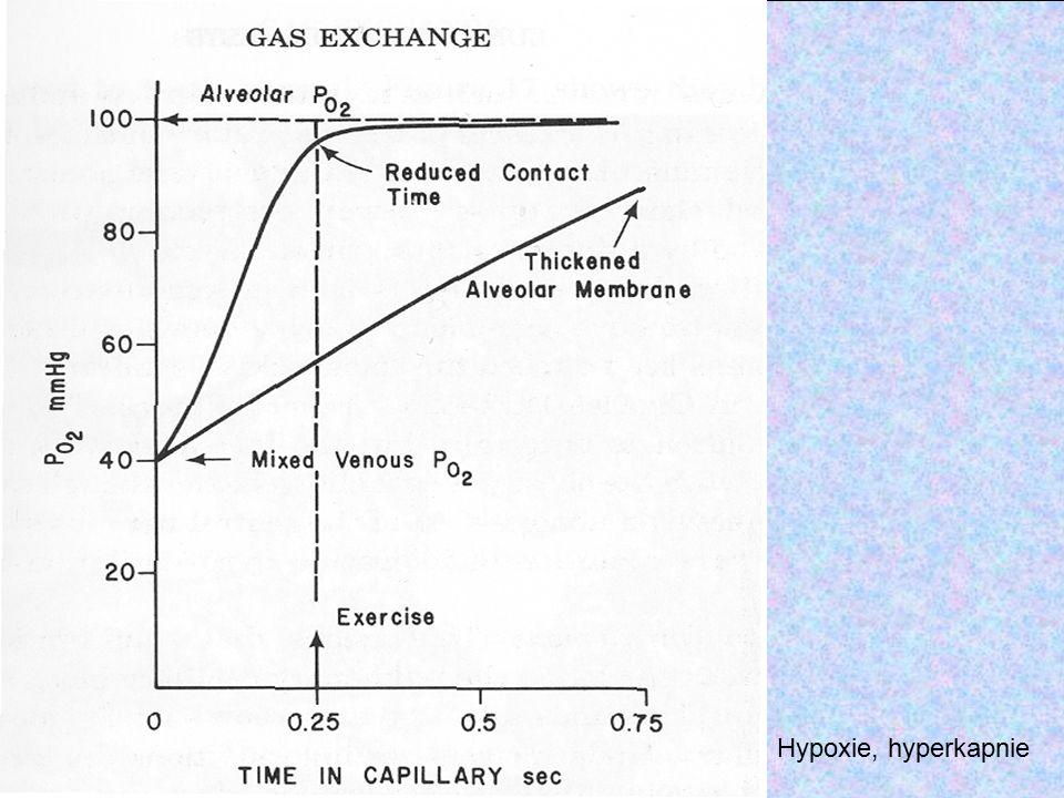 Hypoxie, hyperkapnie Umělá ventilace akutní – podtlaková přetlaková kontrolovaný objem kontrolovaný tlak V V P P netěsnosti