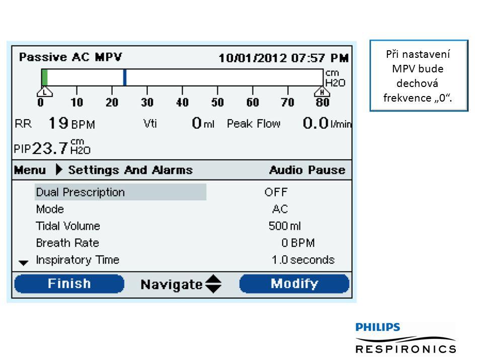 """Při nastavení MPV bude dechová frekvence """"0""""."""