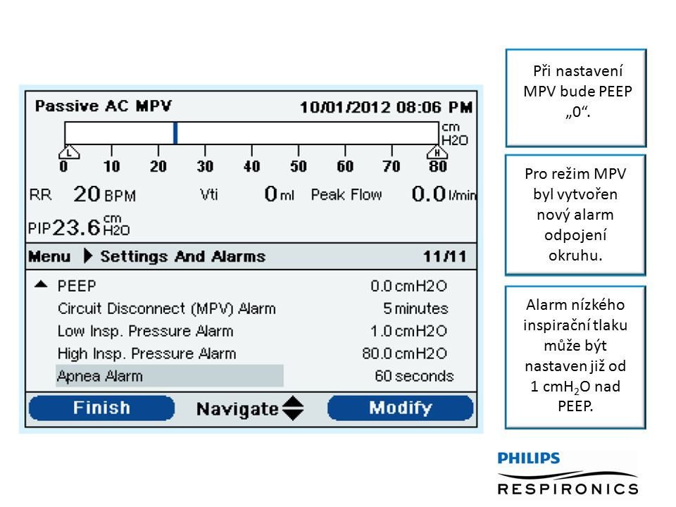 20 MPV doporučené nastavení: Assist Control (AC) 1 V T range reference obtained through a conversation & data provided by Amanda Piper PhD, Royal Prince Alfred Respiratory Failure Service, Camperdown, NSW, Australia Duální předpis:ON, Použijte následující jako PRIMÁRNÍ NASTAVENÍ: Mód: Pozn.: výdechový ventil nesmí být použit.