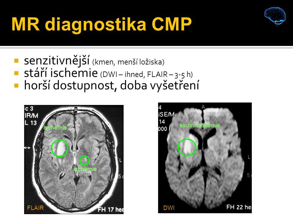  senzitivnější (kmen, menší ložiska)  stáří ischemie (DWI – ihned, FLAIR – 3-5 h)  horší dostupnost, doba vyšetření ischemie ischemie akutní ischemie MR diagnostika CMP DWIFLAIR