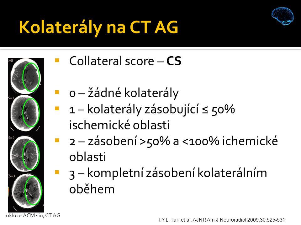 Kolaterály na CT AG I.Y.L. Tan et al.