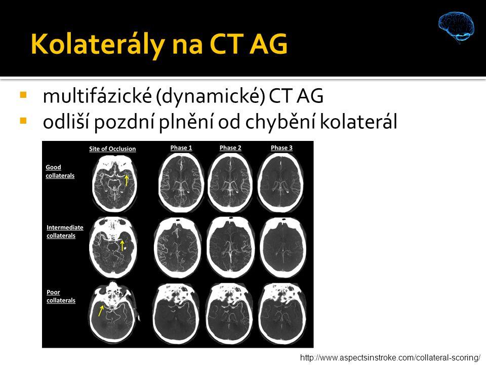 Kolaterály na CT AG  multifázické (dynamické) CT AG  odliší pozdní plnění od chybění kolaterál http://www.aspectsinstroke.com/collateral-scoring/
